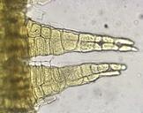 Orthotrichum rupestre