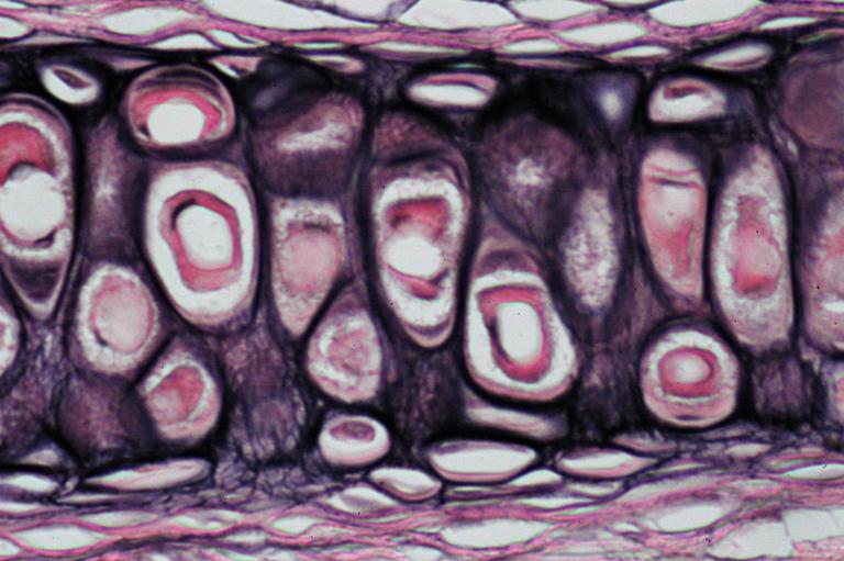 Calphotos Elastic Cartilage Of The Ear 100x Homo Sapiens
