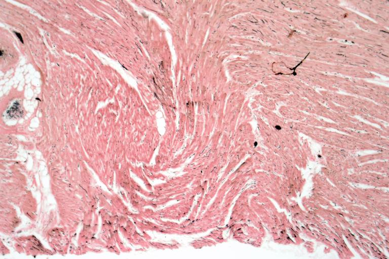Calphotos Cardiac Muscle Longitudinal Section 10x Homo Sapiens