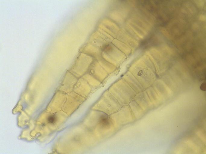 Orthotrichum holzingeri